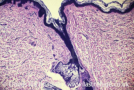 Sebaceous gland in skin section