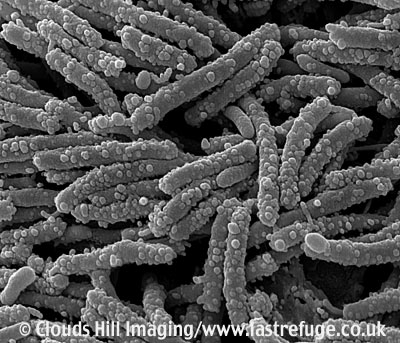 E coli on bathroom surfaces