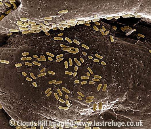 Scanning Electron Micrograph (SEM): E. Coli (Escherichia coli) on Tissue Membrane