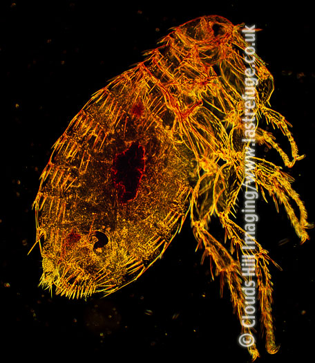 Dark Field Light Micrograph (LM): Oriental Rat, Flea Xenopsylla cheopis