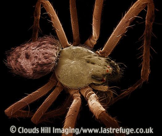 Scanning Electron Micrograph (SEM): Garden Spider - male, Araneus diadematus