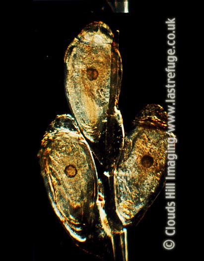 Light Micrograph (LM): Human Head Louse Nits, Pediculus humanus capitis