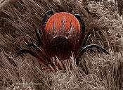 Scanning Electron Micrograph (SEM): Black-legged or Deer Tick, Ixodes scapularis