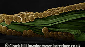 Scanning Electron Micrograph (SEM): Eggs of Spectacle Moth (Abrostola tripartita)