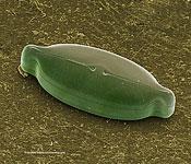 Scanning Electron Micrograph (SEM): Freshwater Diatom