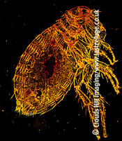 Dark Field Light Micrograph (LM): Oriental Rat, Flea Xenopsylla cheopis
