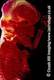 Light Micrograph (LM): Human Embryo, Homo sapiens