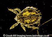 Dark Field Light Micrograph (LM): Scrub Typhus Mite, Leptotrombidium akamushi