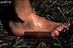 LEECH on Human Foot, Akagera Nat. Park, Rwanda, 1987